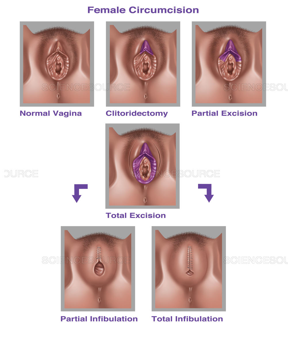 Different Types Of Circumcision For Female Reproductive System