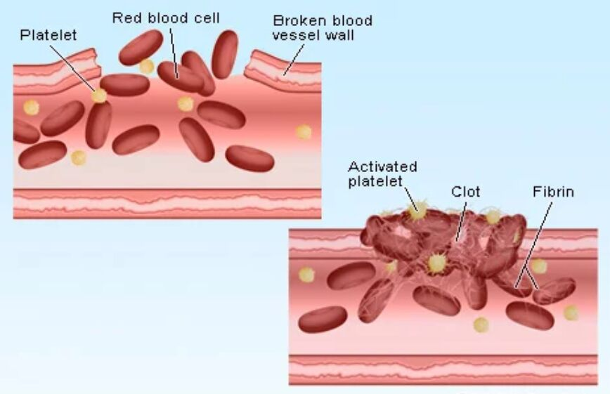 Blood Clot Forming Diagram