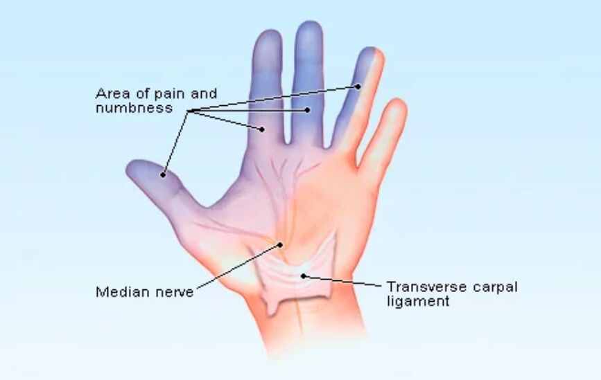 Carpal Tunnel Syndrome Gross View