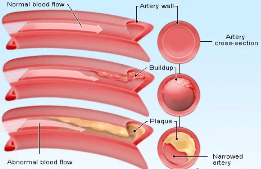 Cholesterol And Artery Wall Plaque Diagram