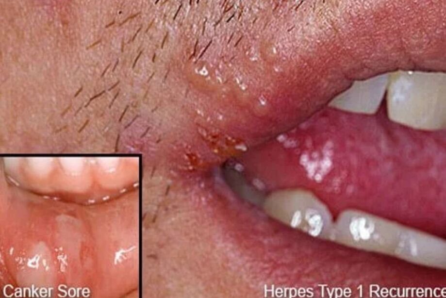 Cold Sore And Canker Sore