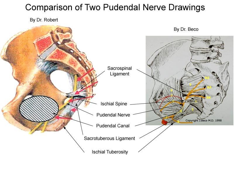 Comparison Of Two Pudendal Nerve Drawings Diagram