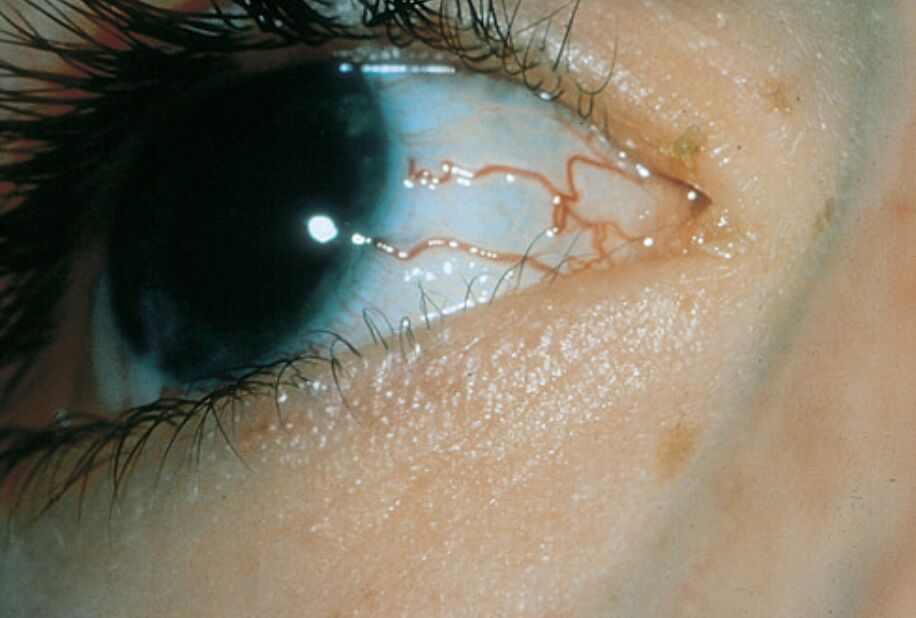 Hereditary Hemorrhagic Telangiectasia On Eye