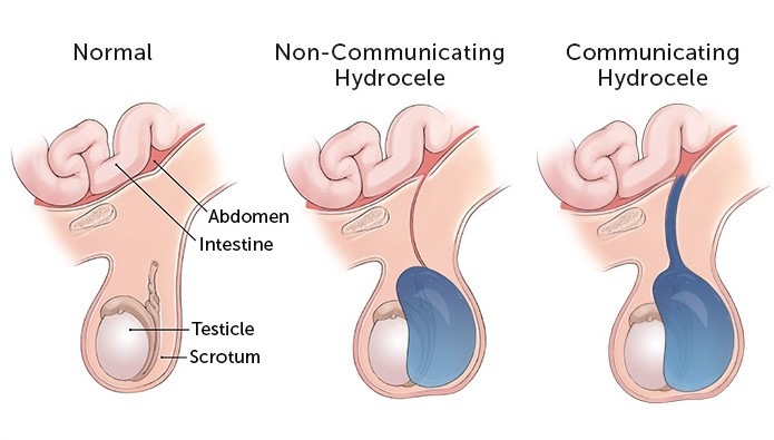 Non-communicating Hydrocele, Communicating Hydrocele Anatomy