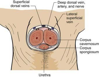 Subcutaneous Ring And Dorsal Penile Block For Newborn Circumcision Diagram
