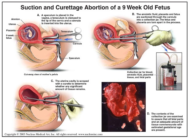 Suction And Curettage Abortion Of A 9 Week Old Fetus Diagram