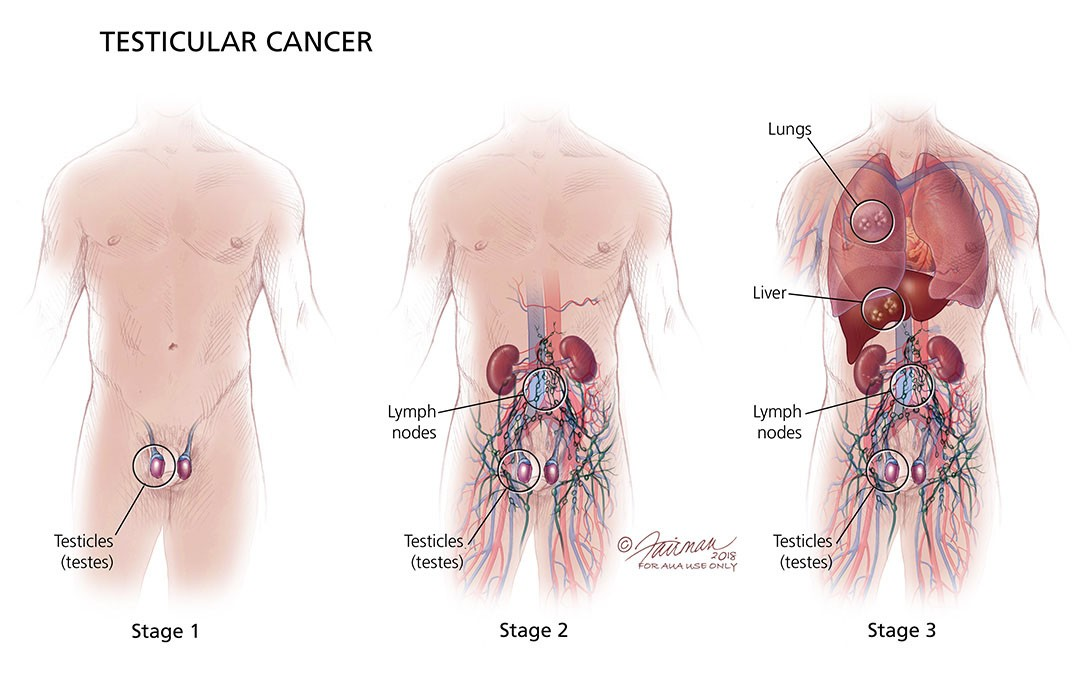 Testicular Cancer Stages Diagram