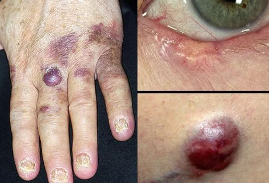 Less Common Skin Cancers