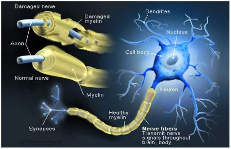 Nerve Fibers And Myelin Attack In Ms