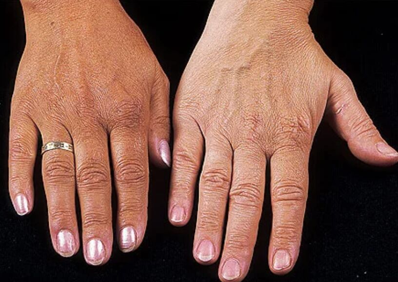 Picture Of Addison's Disease