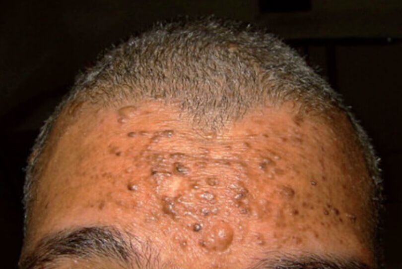Picture Of Angiofibroma (forehead)