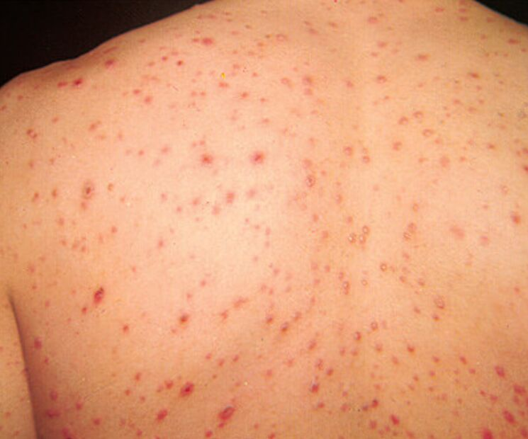 Picture Of Varicella Chicken Pox