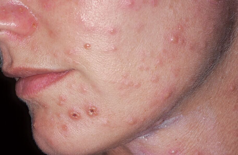 Picture Of Varicella-zoster Virus Infection (face)