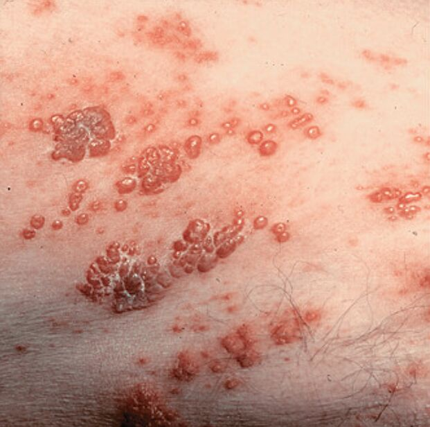 Picture Of Varicella-zoster Virus Infection Close-up