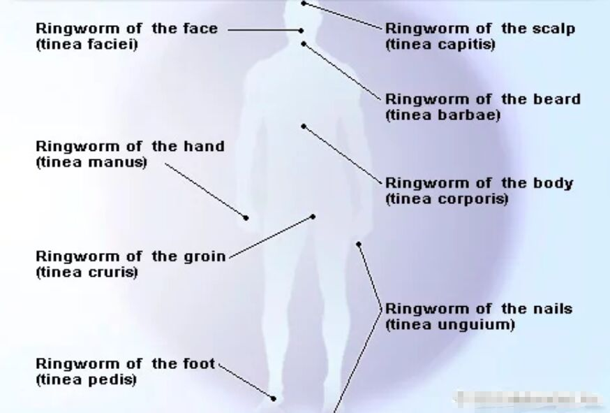 Ringworm Location And Name Diagram