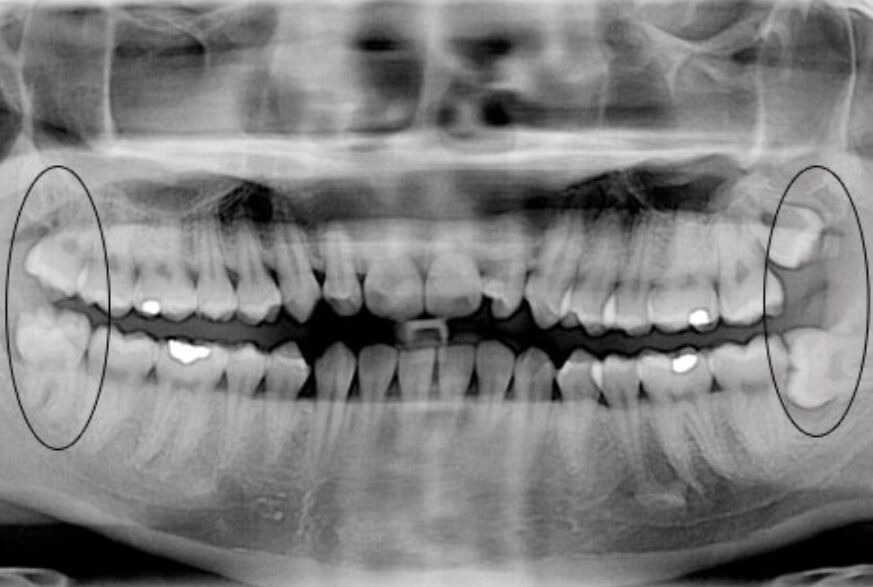 Wisdom Teeth X-ray Diagram