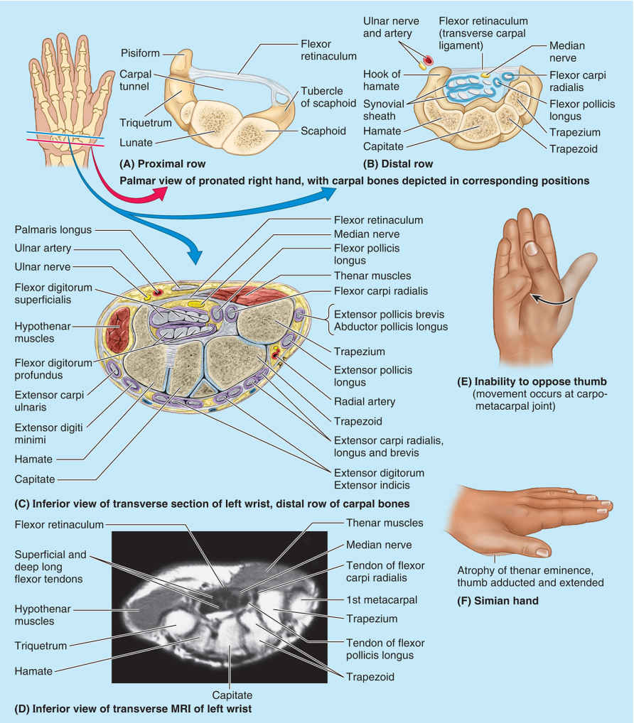 Carpal Tunnel Syndrome Location Diagram