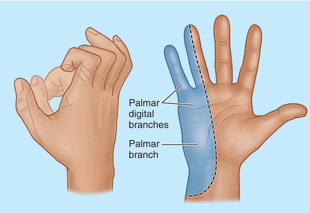Claw Hand And Sensory Distribution Of Ulnar Nerve Diagram