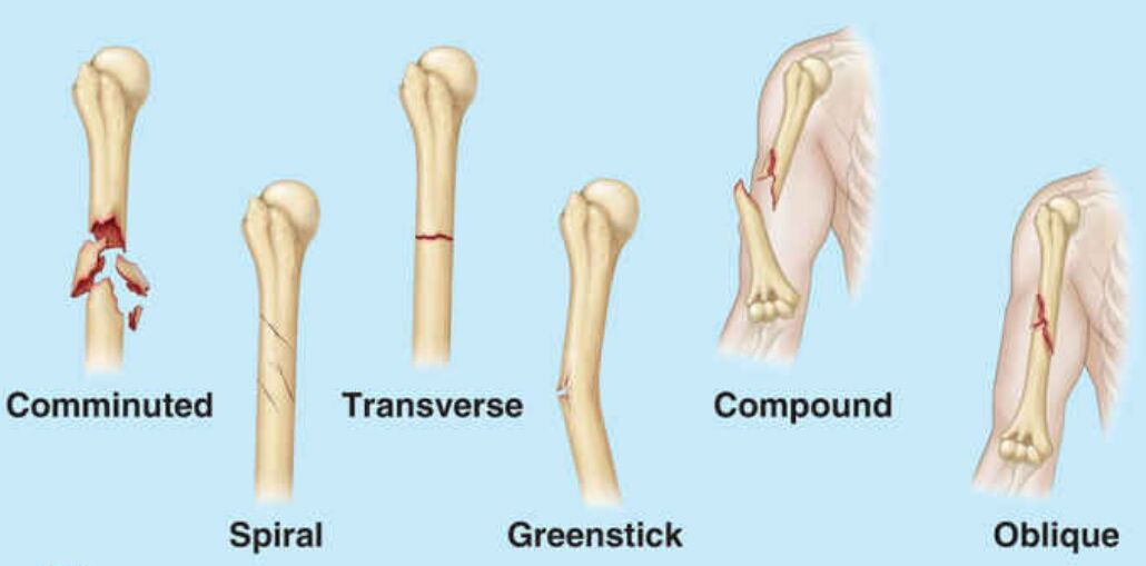 Different Types Of Humerus Fracture