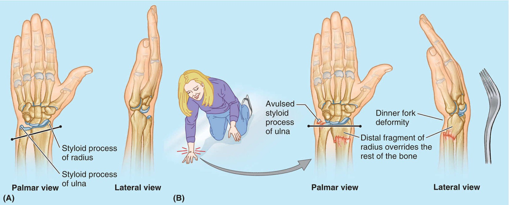 Distal Fracture Of Forearm Bones Anatomical Diagram