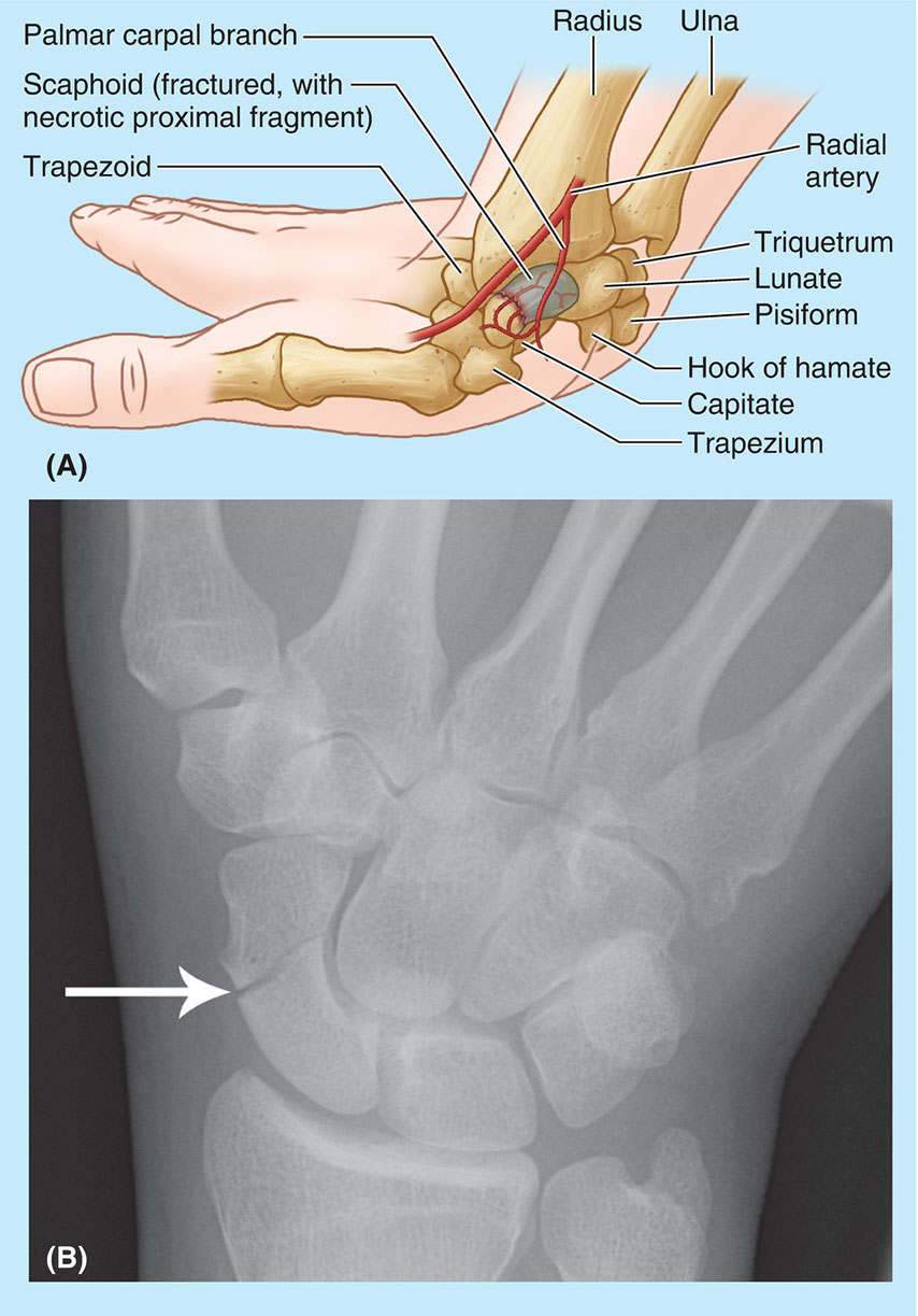 Fracture Of Scaphoid Anatomical Diagram