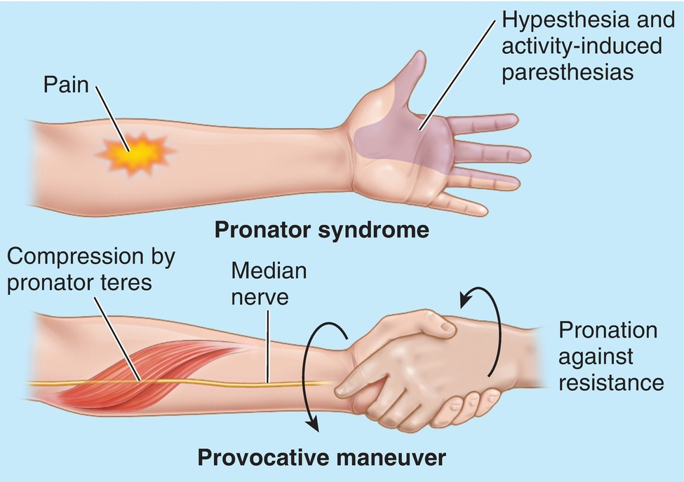 Pronator Syndrome Diagram