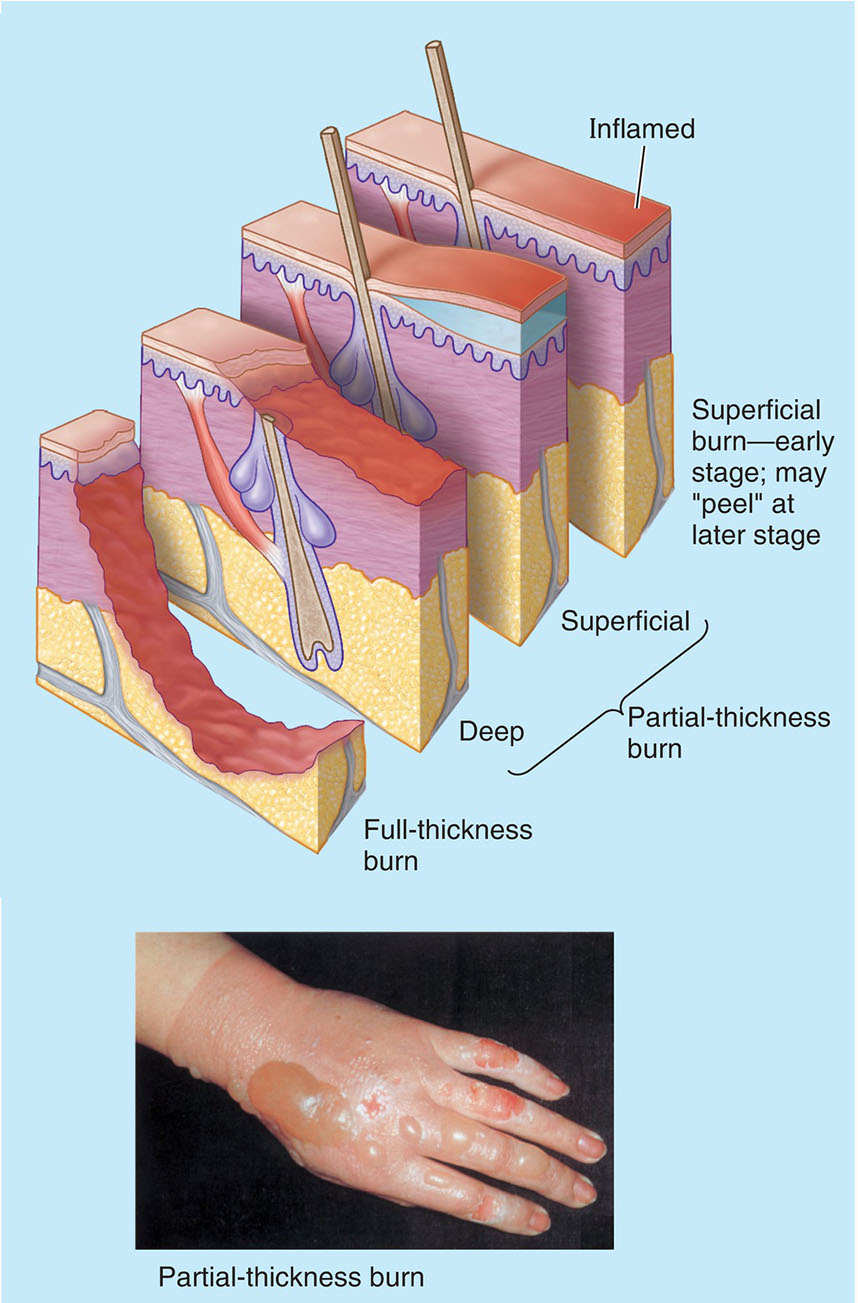 Partial-thickness Burn