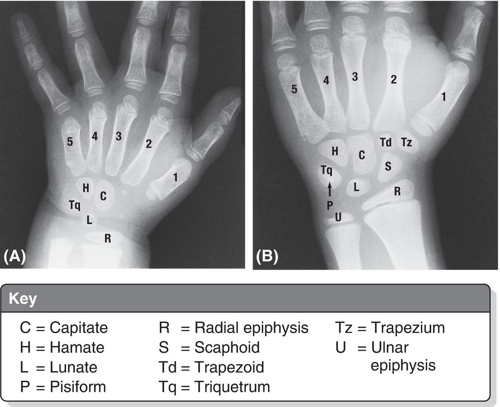 Anteroposterior View, Right Hand Of (a) A 2.5-year-old And (b) An 11-year-old