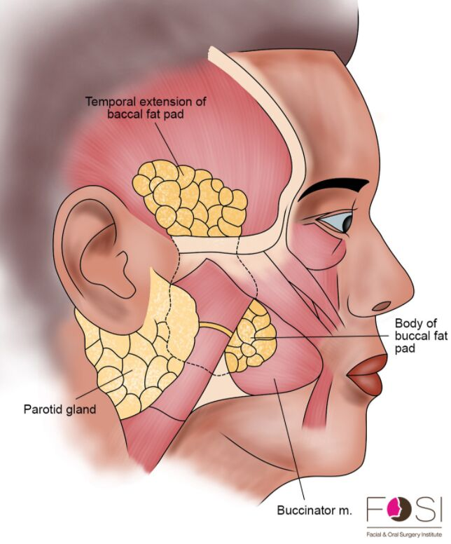 Buccal Fat Anatomical Location