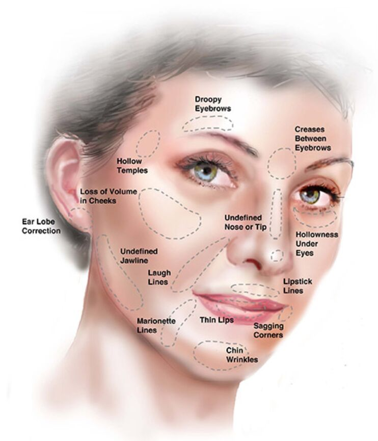 Non-surgical Facelift – Face Section Terminology