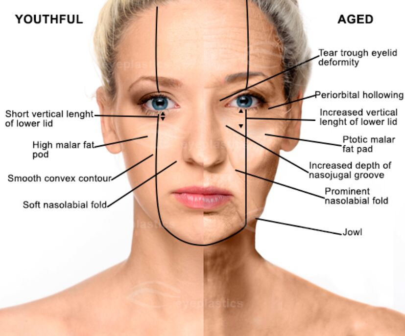 Youthful And Aged Face Lift Anatomical View