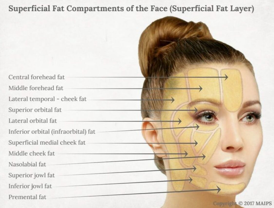 Superficial Fat Compartments Of The Face (superficial Fat Layer)