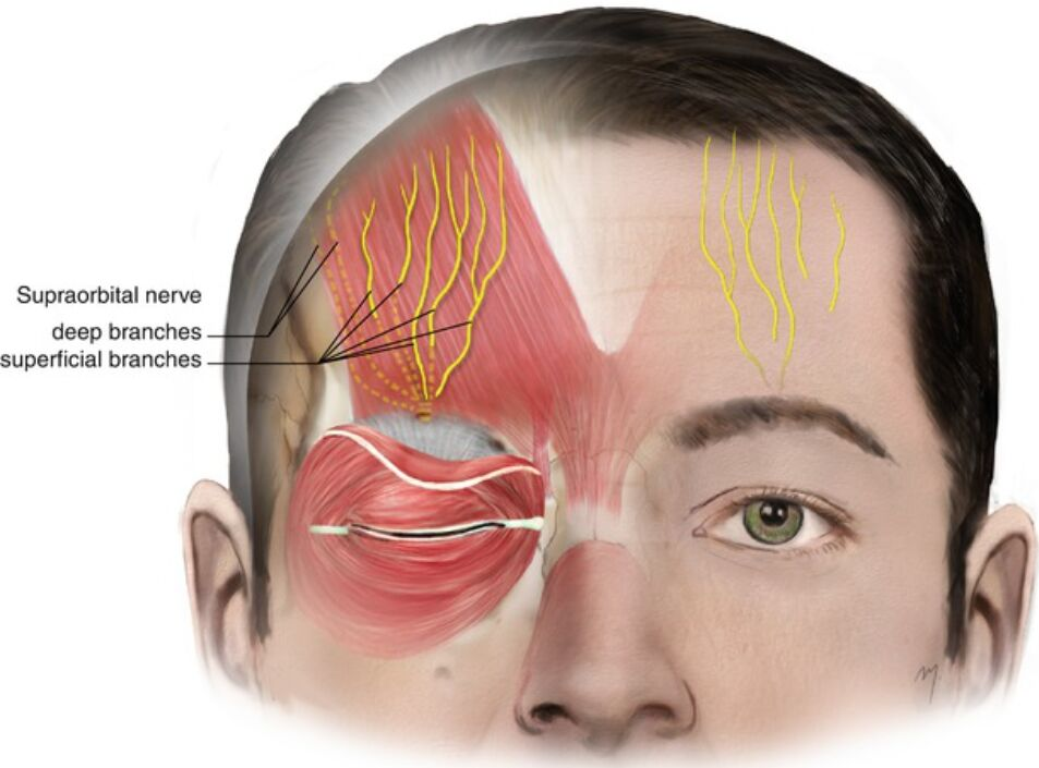 Supraorbital Nerve, Deep Branches And Superficial Branches Anatomical Location