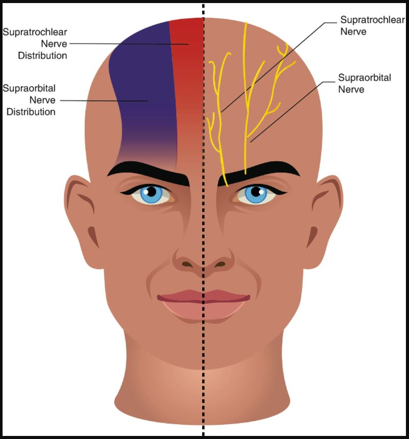 Supratrochlear Nerve And Supraorbital Nerve Distribution