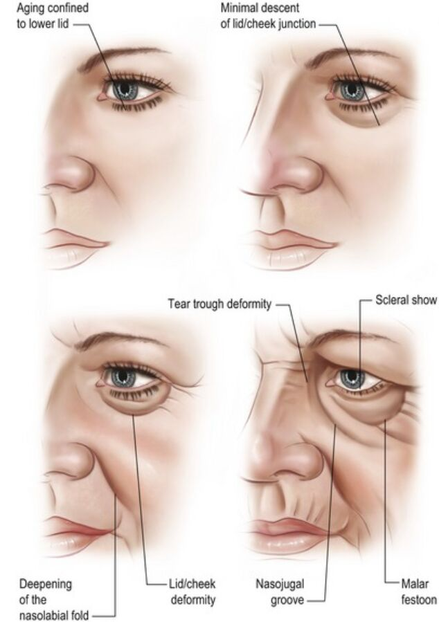 The Human Face Aging Anatomical Changes