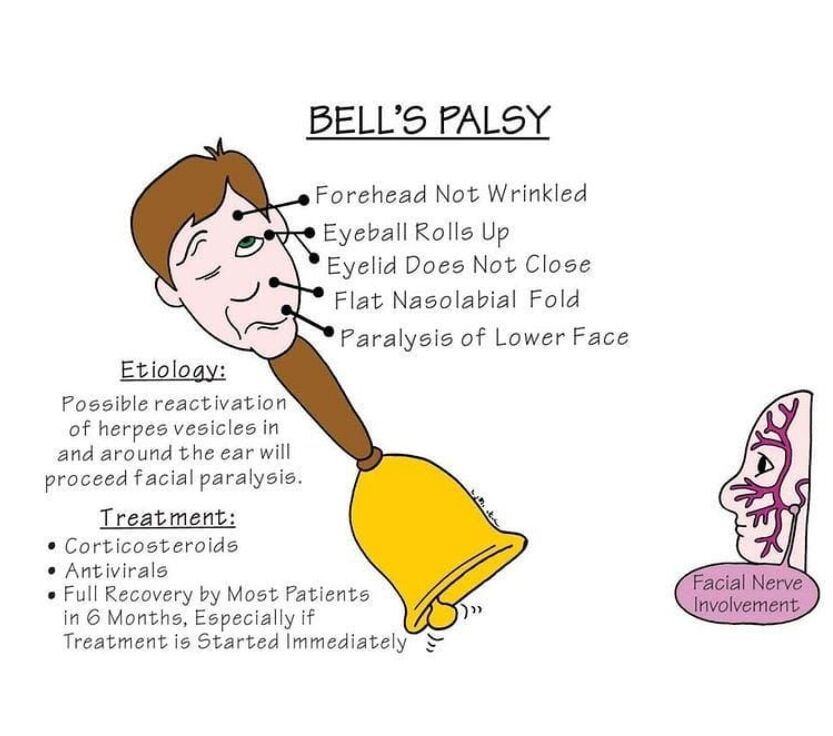 Bell's Palsy View
